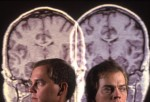 Schizophrenia may be less of a mystery