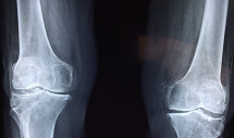 Coming back from injury - When and How?