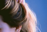 Diet Can Affect Scalp: Here's How to Solve Dandruff Problem